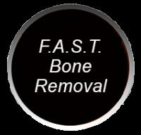 F.A.S.T. Bone Removal