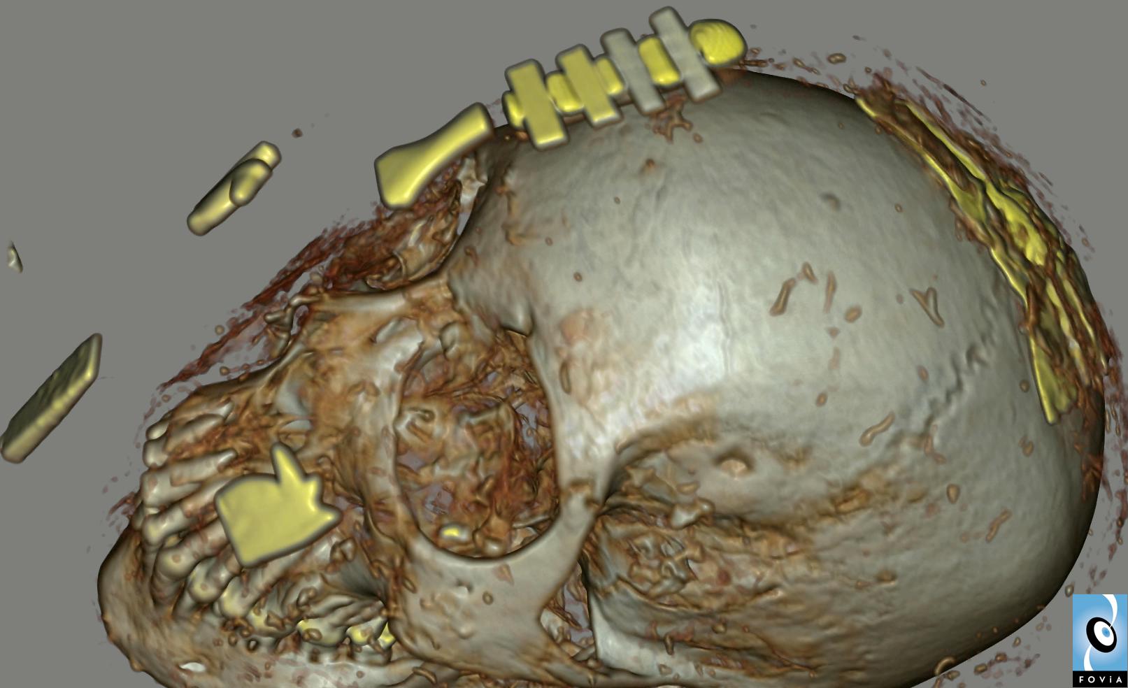 Scotland Mummy Cranial View