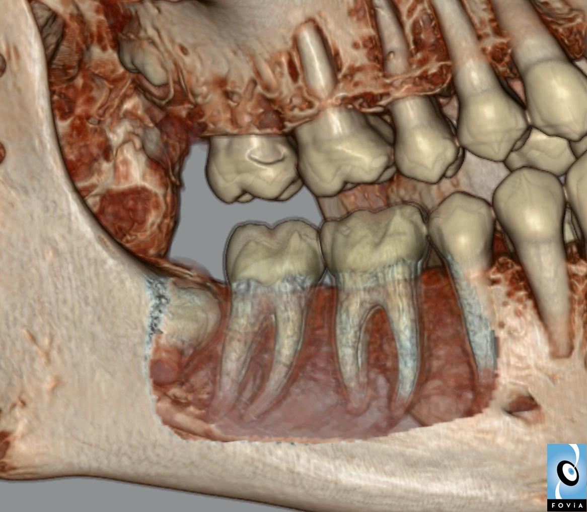 Teeth Roots