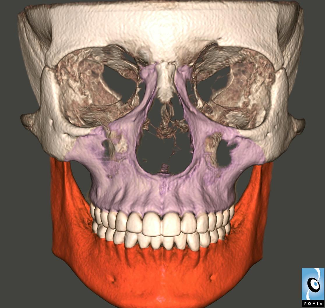 Craniofacial Segmentation